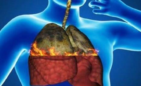 Cara Efektif Membersihkan Paru-Paru Karena Polusi dan Rokok